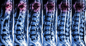 MRI of Lumbar & Thoracic spine : show fracture of thoracic spine and compress spinal cord ( Myelopathy ) Royalty Free Stock Photography