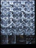 MRI lumbosacral kolumna, rupturowy intra dobro L5-S1 Zdjęcia Royalty Free