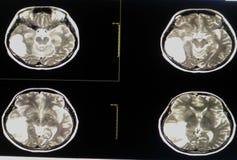 MRI mózg Obrazy Stock