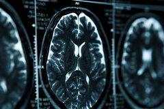 MRI or magnetic resonance image of head and brain scan. Close up view. MRI scan or magnetic resonance image of head and brain scan. Close up view Stock Photos