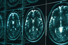 MRI or magnetic resonance image of head and brain scan. Close up view royalty free stock photo
