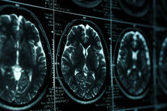 MRI or magnetic resonance image of head and brain scan. Close up view. With perspective Royalty Free Stock Photo