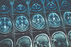 MRI or magnetic resonance image of head and brain scan. Close up view. Toned image Royalty Free Stock Images