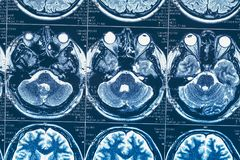 MRI or magnetic resonance image of head and brain scan Royalty Free Stock Image