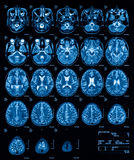 MRI (Magnetic resonance imaging) of the brain, transvers view, T2. royalty free stock photos