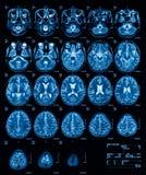 MRI (magnetic resonance imaging) van de hersenen, transvers bekijkt, T2 Royalty-vrije Stock Foto's