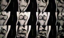 MRI Manetic共鸣imagingof膝盖,膝盖关节流出 库存照片