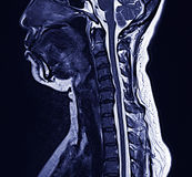 MRI neck. MRI of the cervical scan Royalty Free Stock Photos