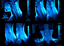 MRI neck scan Stock Photography