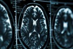 MRI o imagen de resonancia magnética de la cabeza y de la exploración de cerebro Ciérrese encima de la visión fotos de archivo