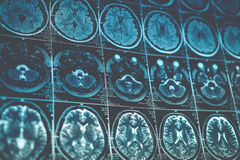 MRI o imagen de resonancia magnética de la cabeza y de la exploración de cerebro Ciérrese encima de la visión, entonada fotos de archivo libres de regalías