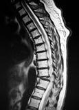 Mri pathologique de compression de corps de vertèbres thoraciques image libre de droits