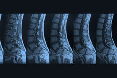 MRI-Picture Royalty Free Stock Photography