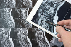 MRI Pictures of spinal column , Doctor pointing to the problem Royalty Free Stock Photography