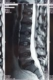 MRI Scan. Of a human spine, disk, herniated Royalty Free Stock Photo