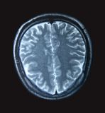 MRI Scan Stockbilder