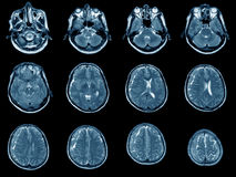 MRI scan of brain Stock Photos