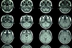 MRI scan of the brain royalty free stock photography