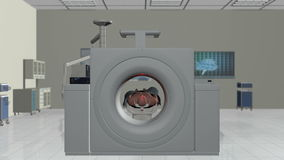 MRI Scan, Camera Fly Through and stop on Brain Scan, Alpha, stock footage Stock Photos