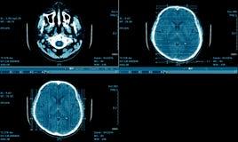 MRI-Scan des Gehirns, CT-Scan Brain Series, medizinischer Hintergrund Lizenzfreie Stockbilder