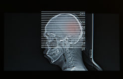 MRI  Scan of head of human show head injury Royalty Free Stock Photography