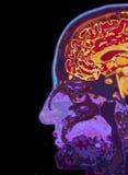 MRI Scan Of Head Showing Brain