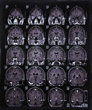 MRI scan image of brain royalty free stock image