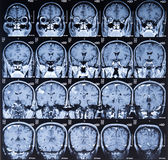 Mri scan image Stock Photos