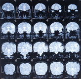 Mri scan image Royalty Free Stock Photography