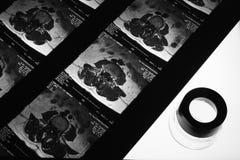 MRI scan on light box Royalty Free Stock Photos