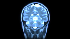 MRI scan Stock Photography