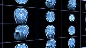 MRI scan Stock Images
