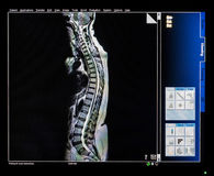 Mri Scan Monitor. With Scan image of Backbone royalty free stock images