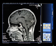 Mri Scan Monitor. With Scan image of Head royalty free stock photo