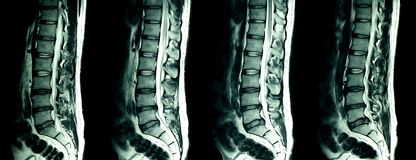 Free MRI Scan Of Lumbar Spines Of A Patient With Chronic Back Pain Royalty Free Stock Photo - 111820095