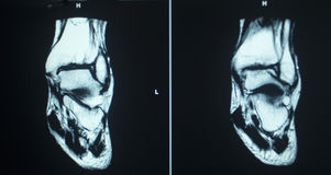 MRI scan test results ankle injury Royalty Free Stock Images