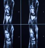 MRI scan test results wrist hand injury Stock Photos