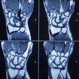 MRI scan test results wrist hand injury Royalty Free Stock Photo