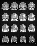 Mri sequence of brain showing tumor. Mri in the coronal plane showing large tumor stock photo