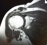 Mri shoulder pathology. There is pathology of shoulder ,which is wellknown for medical specialist , location of pathology in the area of coracoacromial ligament royalty free stock photo