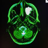 Mri of  sinusitis. The basis of modern medicine is modern diagnostic with possibilities to show area of pathology in different positions and anatomical Royalty Free Stock Photography