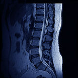 MRI Spine Royalty Free Stock Photography