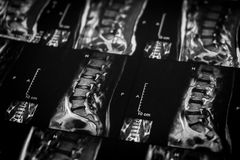 MRI spine. Of the lumbar stock image