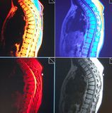 Mri of  thoracic  spine pathology Royalty Free Stock Images
