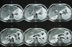 MRI van Buik Royalty-vrije Stock Afbeelding