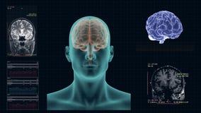 MRI van de menselijke hersenen in de Kroonprojectie stock illustratie