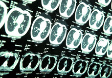 MRI van menselijke hersenen Stock Afbeelding