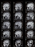 MRI View of a Human Brain Royalty Free Stock Image