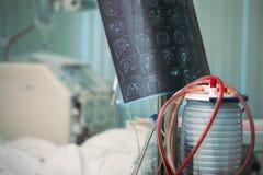 MRI wizerunek obok cierpliwego łóżka otaczającego postępowym wyposażeniem w krytycznej opieki jednostce obraz stock