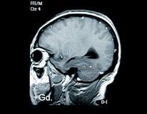 Mribeeld van hersenen Stock Foto